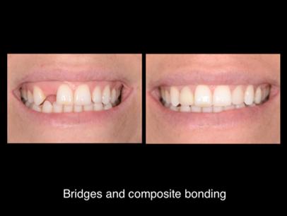 BRIDGES & COMPOSITE BONDING JHJ