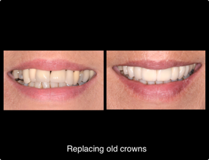 REPLACING OLD CROWNS